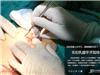 手术第一刀:沿乳晕切口