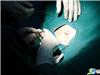 手术刀确定切口