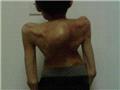 重度脊柱侧弯前凸畸形