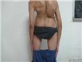 重度脊柱侧弯后视图