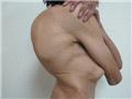 脊柱侧弯侧视图