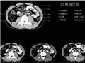 L3椎体层面