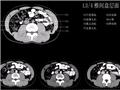 L3/4椎间盘层面