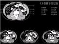 L3椎体下部层面