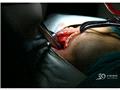 准备进行肿物摘除