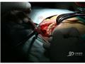 肿物的摘除