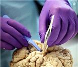 神经病理学家演示人脑解剖全过程
