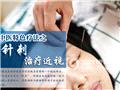 中医特色疗法之针灸