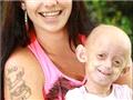 埃利奥特的妈妈菲比说,现在埃利奥特已经长出了少量毛发,但还是显得有些秃头,而且皮肤干瘪,这些让她走在路上很有回头率。她的手没有太大力气抓物,也患上了关节炎和心脏病以及呼吸系统方面疾病,她的身高不足1米
