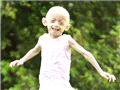 英国女孩埃利奥特在一岁时就被诊断患上早衰症,她今年7岁,看上去却像是一名老人了,且皮肤看上去呈淡绿色。
