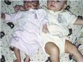 美国奇特双胞胎姐妹 身高智力天壤之别