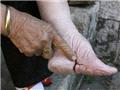 实拍三寸金莲:清末妇女裹脚缠足文化