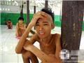 印尼精神病患者的悲惨人生