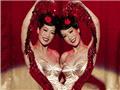 国外连体双胞胎奇异人生(来源:光明网)