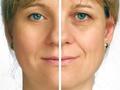 双眼皮手术结果