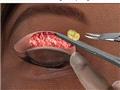 双眼皮手术是怎样做出来的(组图)