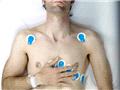 英国摄影师自拍心脏手术获奖
