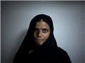 惨遭硫酸毁容的巴基斯坦妇女