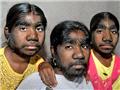 印度三姐妹患怪病全身长毛 外形似狼人
