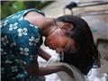 聚焦尼泊尔惨重烧伤儿童