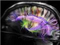 美科学家用磁共振绘制人脑内部