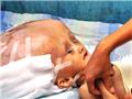 印尼3岁女童患怪病头似外星人