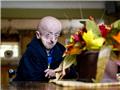 16岁早衰症患者如60岁老人 游戏成求生良药