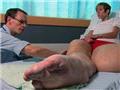 英女子患巨腿症双腿重达108公斤