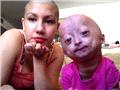 美6岁女童患罕见早衰症貌似老太