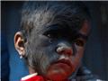 """尼泊尔""""半脸毛孩""""手术后获新生"""