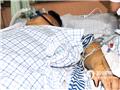 手术后当天,梁用安静地躺在病床上。