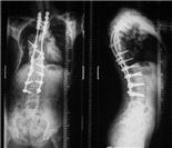 脊柱侧弯系列:极重度脊柱侧弯实拍