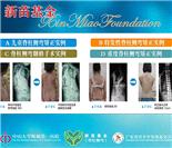 新苗基金(脊柱侧弯)手术援助55例