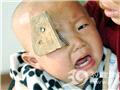 岁半小儿摔倒 木板上铁钉插入颅骨