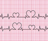 完全性房室传导阻滞伴心房纤颤 Atrial fibrillation and comple...