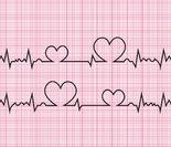 一度房室传导阻滞 first degree heart block