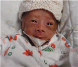 广州首例五胞胎:四个宝宝完成视网膜修复