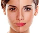 通过脸上痘痘位置看你的健康状况