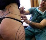 匈牙利低价整容手术吸引外国游客:吸脂隆胸拉皮手术实拍