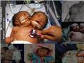 盘点全球罕见双头婴儿