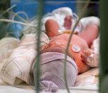 雅典新生儿剖腹产后居于羊水囊中