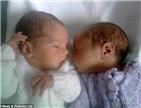 母亲生不同国籍双胞胎
