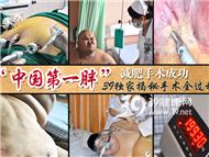 """39独家:""""中国第一胖""""微创减肥手术后22天减重47斤"""