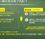 哪些指标可以确定是否患了丙肝?