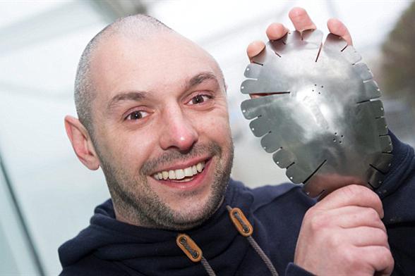 英男子借助3D技术修复缺失头骨