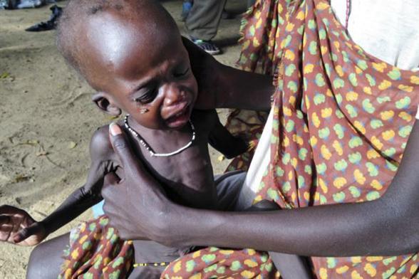 图曝南苏丹儿童严重营养不良健康堪忧