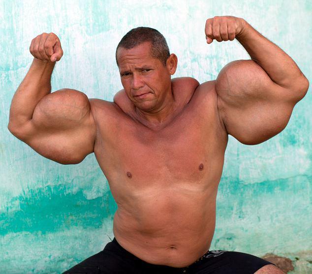 男子注射混合物长肌肉