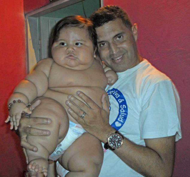 8个月男婴重达40斤