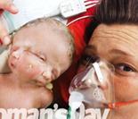 """澳女子诞下""""双面怪婴"""" 共享头身却有两个大脑"""